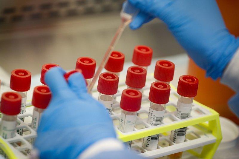 UK coronavirus vaccine prompts immune response in early test | Valley News
